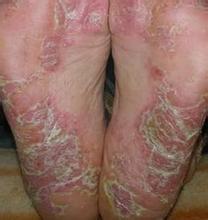脚部银屑病总是脱皮怎么办