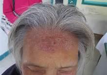 头上患有银屑病怎么治疗