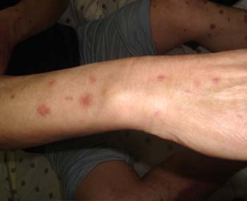 牛皮癣疾病常见的三大症状