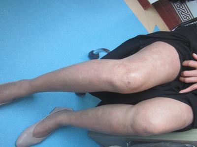 牛皮癣的早期症状表现图片