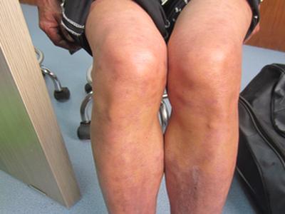 牛皮癣的红疹症状图片是什么