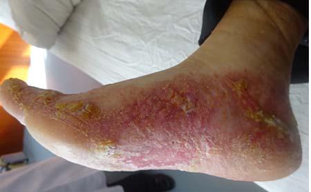 全身都是银屑病红疹如何治疗呢
